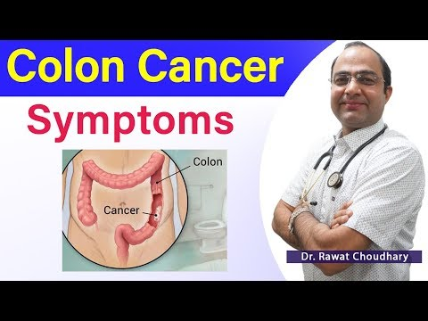 Symptoms Of Colon Cancer Colon Cancer Best Treatment Large Intestine Cancer Youtube