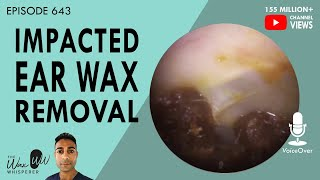 643 - Impacted Ear Wax Removal