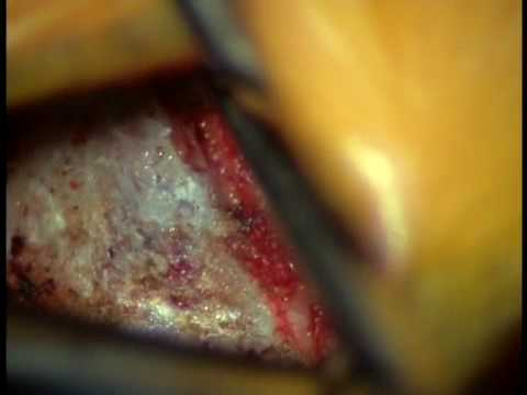 Video Of L5 S1 Surgery Lumbar Microdiscectomy Low Back