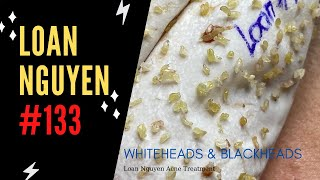 Removal Whiteheads And Blackheads #133