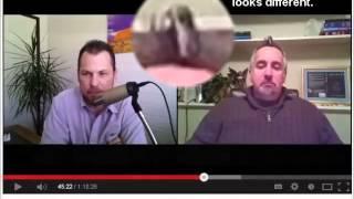 Stan Romanek, famous alien abductee, faking thumbnail