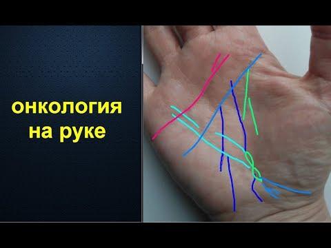 Онкология на руке. Анализ линий на ладони.