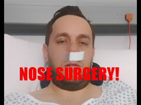 The long term consequences of a repeatedly broken nose