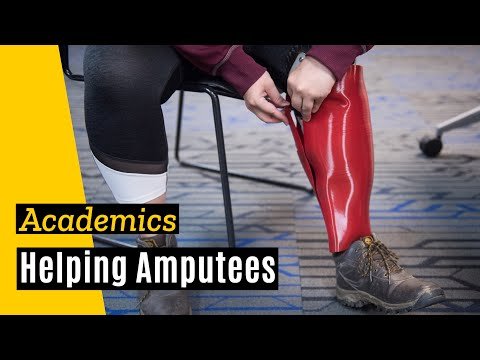 University of Iowa Helps Student Create Business for Amputees on YouTube