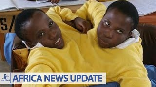 Africa's Longest Living Conjoined Twins Maria and Consolata Die
