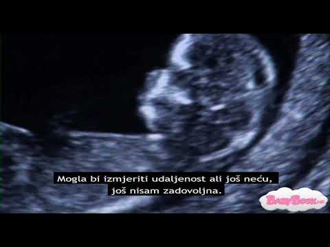Ultrazvuk datiranje precizno