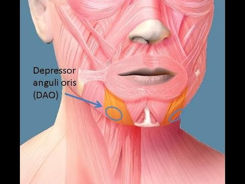2]kopf-linksoberflÄchlichmund wange kinn linksm.depressor, Human Body
