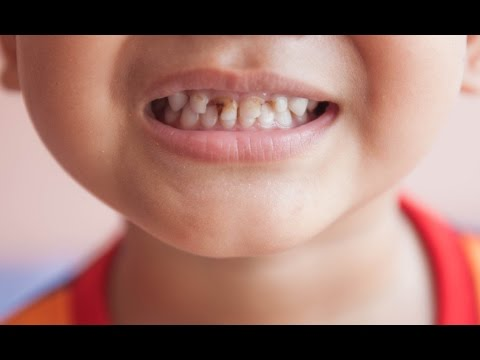 Dental Hygiene Early Childhood Caries Youtube