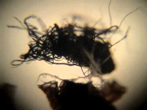 Gmo Alien Hair Fiber Alive Under Microscope Morgellons
