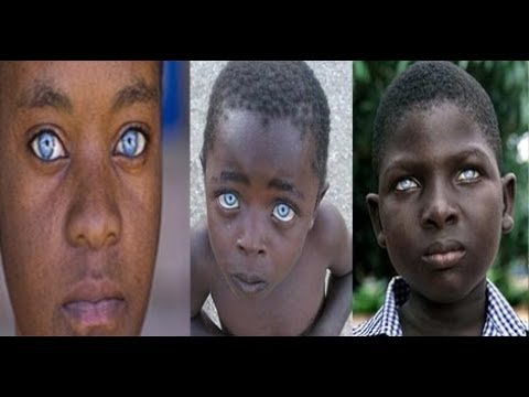 Black People with natural blue eyes - YouTube