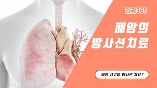 폐암의 방사선치료[TB…