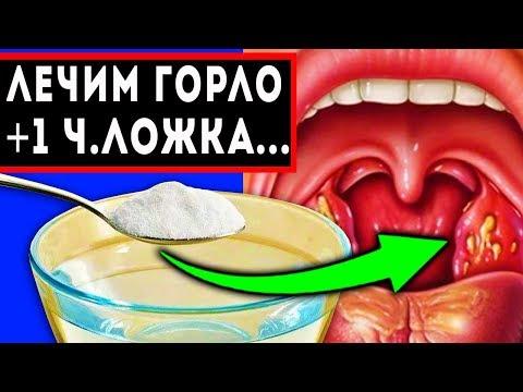 Компресс горло болит