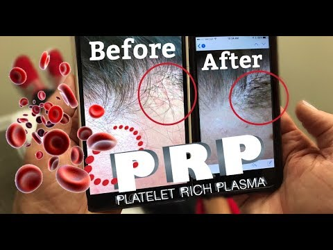 FOLLOW UP   PRP Hair Thickening Treatment!
