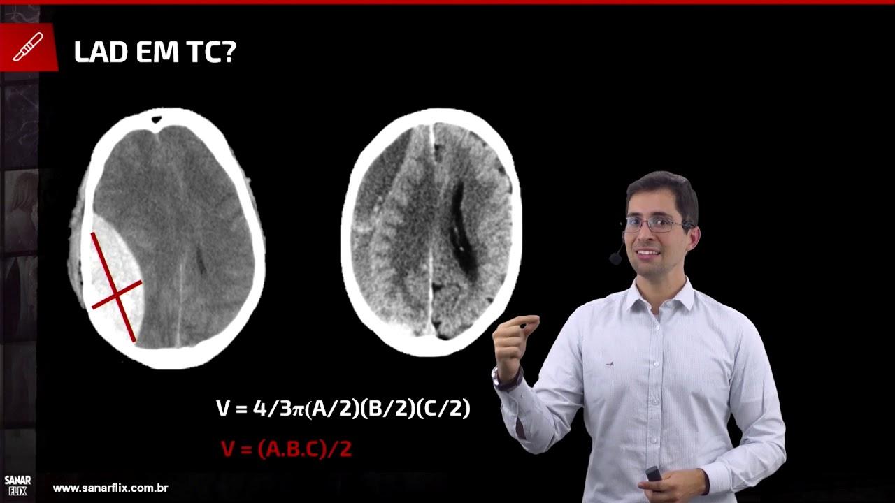 Traumatismo crânio encefálico (TCE) - Aula de Cirurgia do Trauma SanarFlix