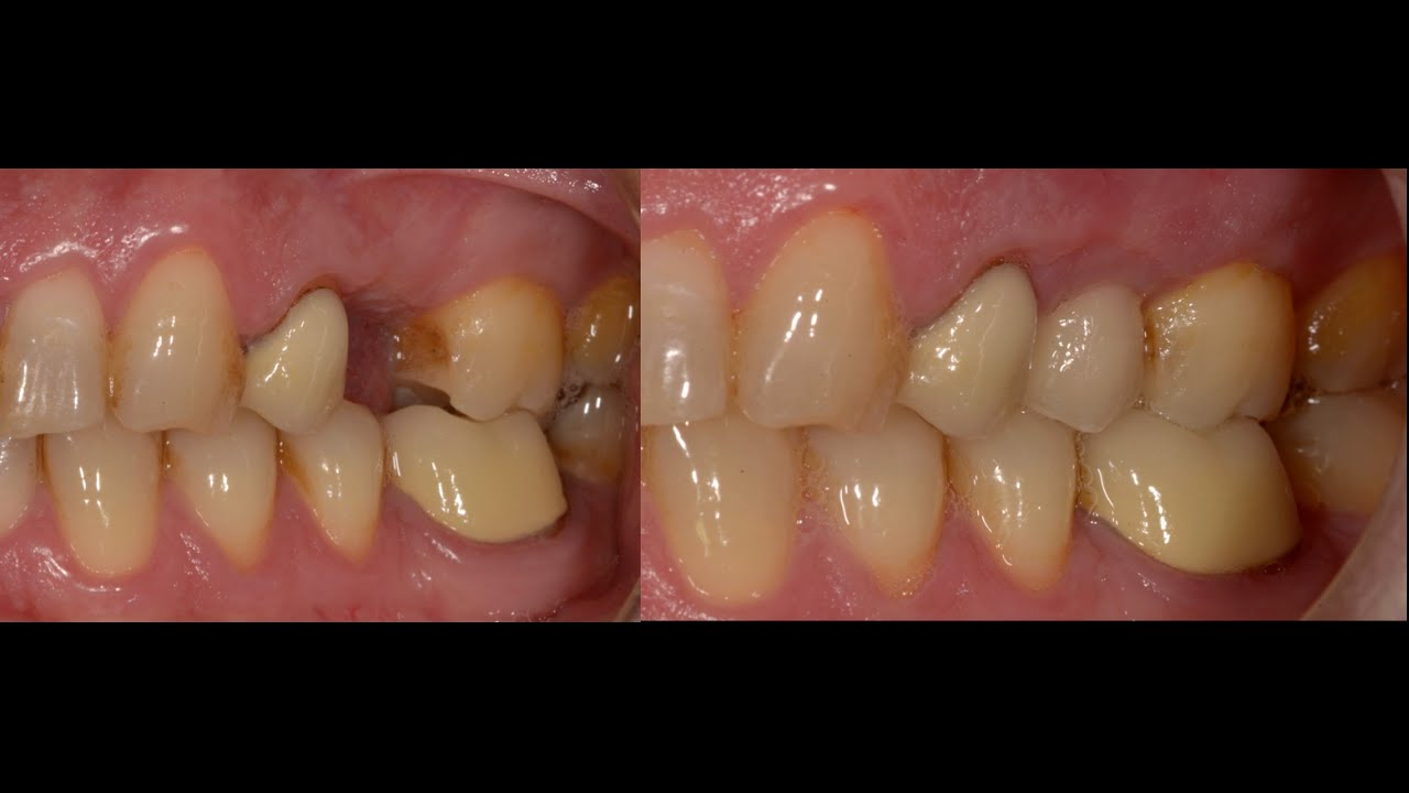 missing upper left premolar replaced with dental implant