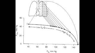 ventilation perfusion ratio v q mismatch