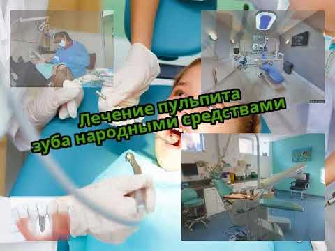 Лечение пульпита зуба народными средствами
