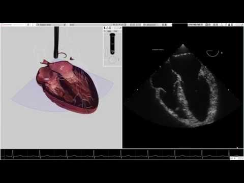 HeartWorks Doppler Features