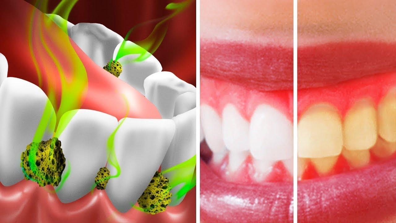 10 Maneras de matar bacterias en la boca y detener el mal aliento