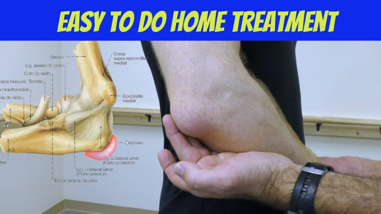 kalcaneális bursitis tünetei és kezelése