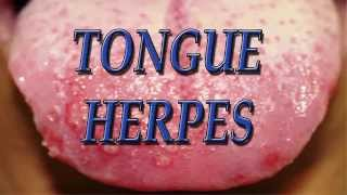 Tongue herpes - Herpes on Tongue, Tongue herpes cure