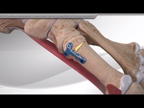 Коррегирующая остеотомия