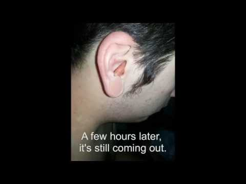 Worst Ear Infection Ever! Must See!