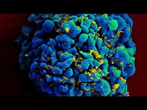 Molecule Shows Ability to Block AIDS Virus