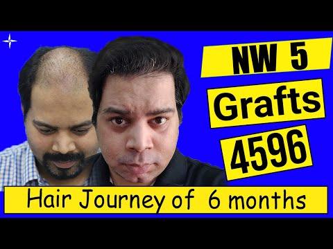Hair Transplant Result in 6 Months,4596 Grafts, Grade 5,@Eugenix by Expert Hair Restoration Surgeons