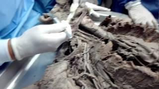 De venas y arterias fotos
