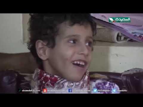 سنابل الخير - الحمى الشوكية تحرم طفل اجمل لحظات حياته 8-7-2019م