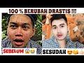 TUTORIAL MAKE UP COWOK CARA MENUTUPI JERAWAT || TERBUKTI JADI MULUS !!