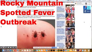 america poised for outbreak of deadly rocky mountain spotted fever