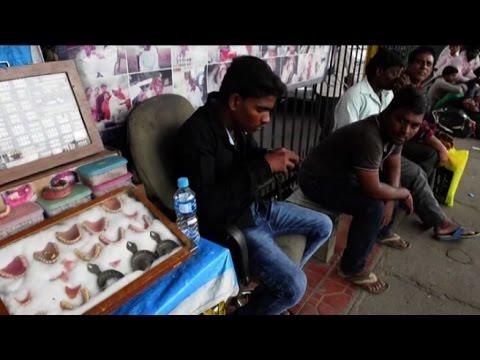Dentisti di strada in India, poca igiene ma cure più accessibili