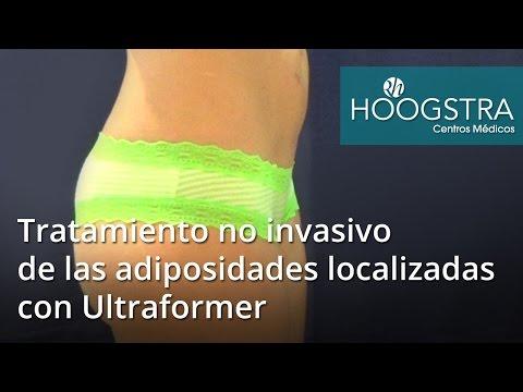 Tratamiento no invasivo de las adiposidades localizadas con Ultraformer (16156)