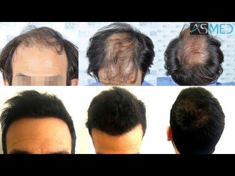 Dr Koray Erdogan 5544 Grafts Fue Hair Transplant Result