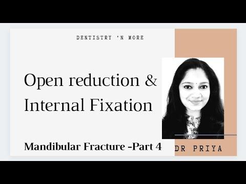 MANAGEMENT OF MANDIBULAR FRACTURES -PART 4(OPEN REDUCTION &INTERNAL FIXATION )