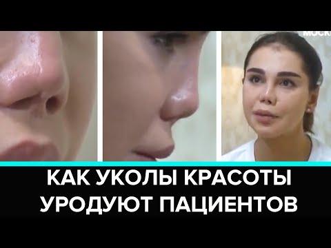 """""""Красивая жертва"""": как уколы красоты уродуют пациентов - Москва 24"""