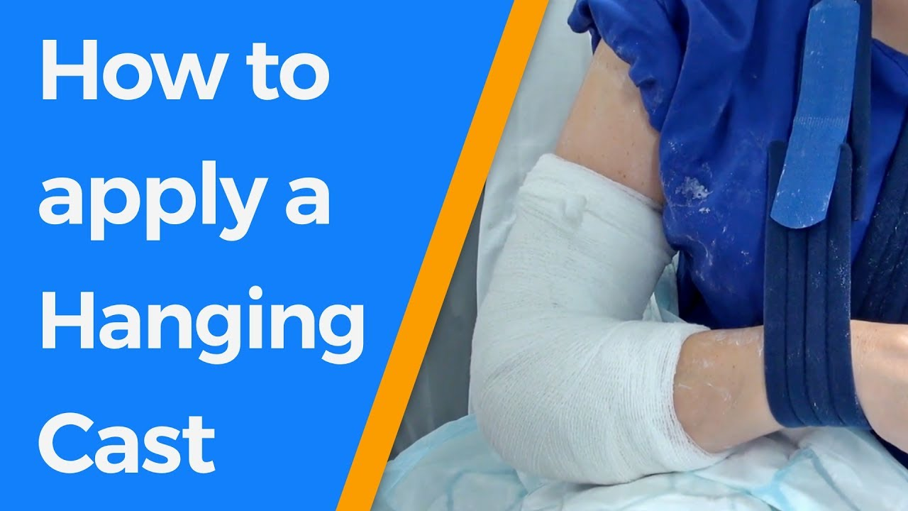 How to apply a Hanging Cast