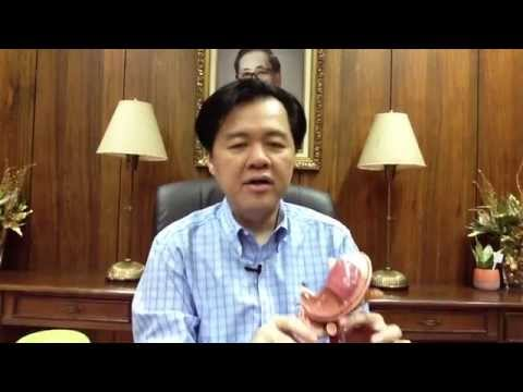 Stomach Ulcer and Hyperacidity: Dr. Willie Ong Health Blog #24