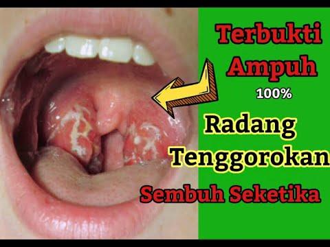 cara-mengobati-radang-tenggorokan-secara-alami-cara-menyembuhkan-radang-tenggorokan-batuk-flu-hilang