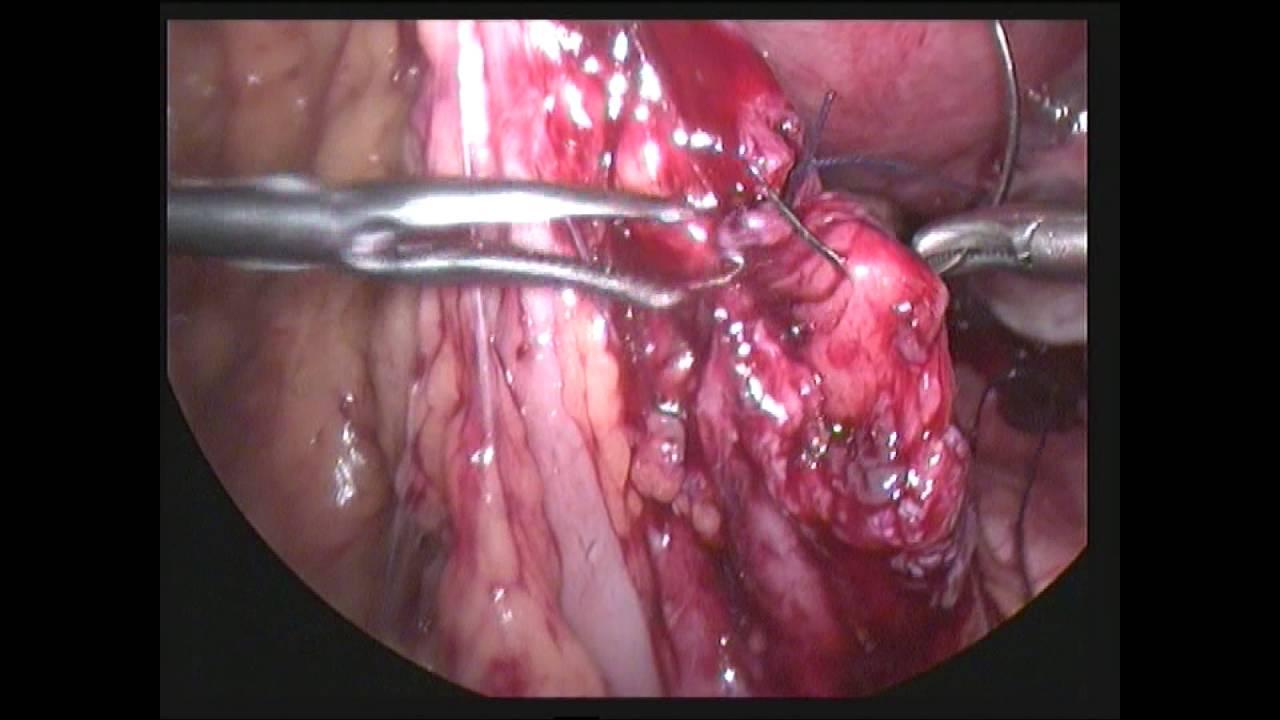 Laparoscopic Repair Of Bowel Injury By Dr Pragnesh Shah Motera Ahmedabad