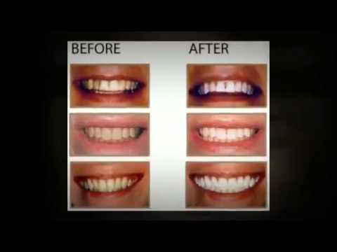 Alta White Celebrity Teeth Whitening Whiten Teeth At Home With