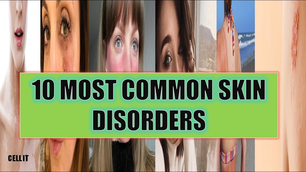 10 MOST COMMON SKIN DISORDERS(DISEASES) IN HUMANS - YouTube