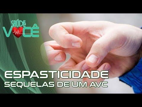 Espasticidade | Dra.