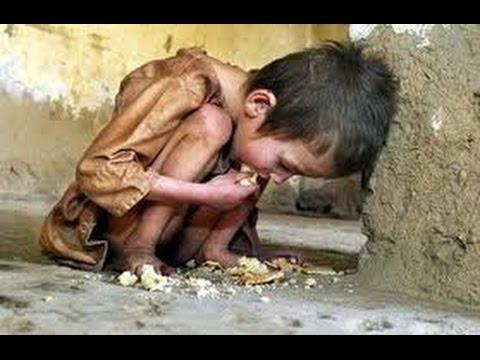 Голод в мире