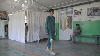 GLOBALink | Afghan young man loses leg by stray bullet, seeks rehabilitation
