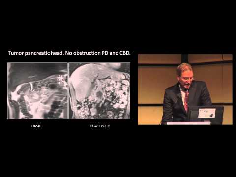 Dr. J. Hermans: Liver and Pancreatic perfusion using Aquilion ONE Vision
