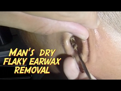 Man's Dry Flaky Earwax Removal