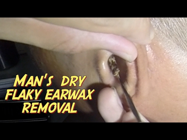 Mans Dry Flaky Earwax Removal